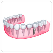 dental-implants-west-village-dental-toronto