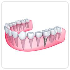 dental-implants-west-village-dental-toronto