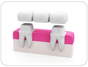 dental bridge - toronto dentist - west village dental