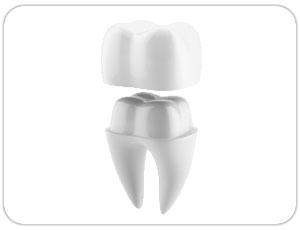 dental crown - dental cap - toronto, on dentist