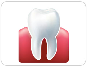wisdom tooth extraction - toronto dentist - west village dental