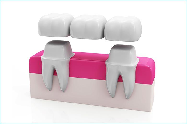 dental bridge in toronto dentist west village dental clinic - dr. triassi