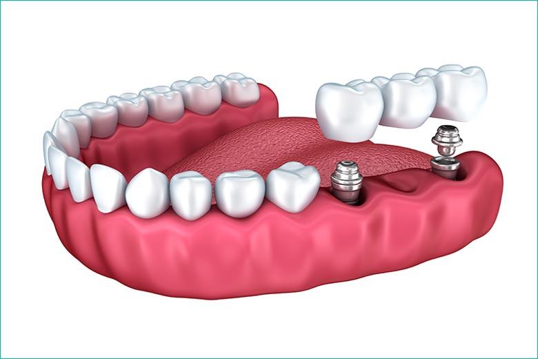 implant-supported dental bridge in toronto - west village dental clinic