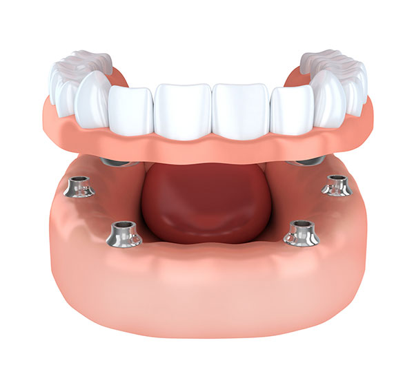implant supported denture toronto on dentist
