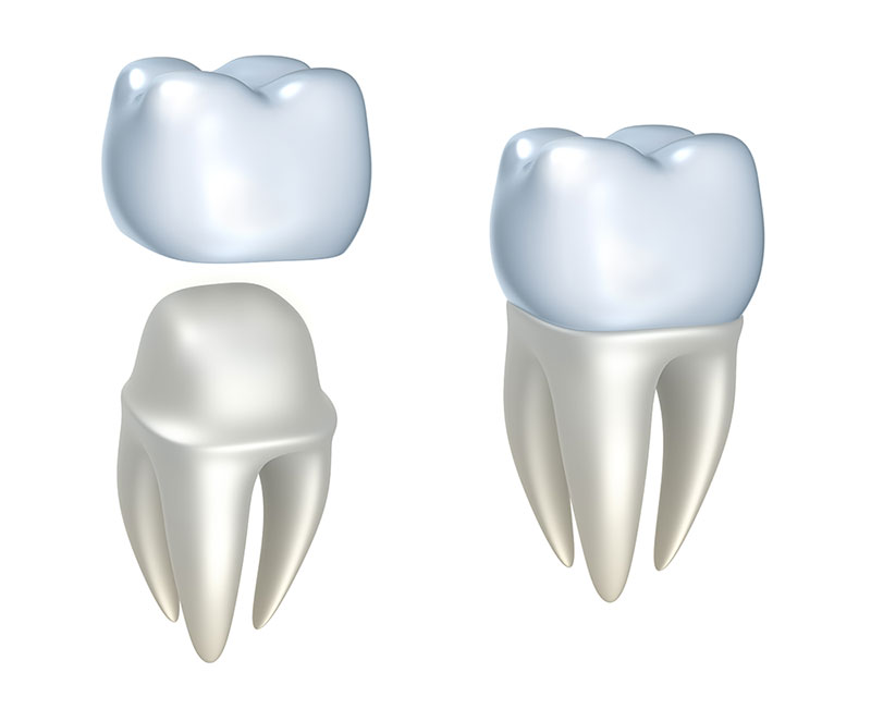 What Is A Dental Crown & Do You Need One?