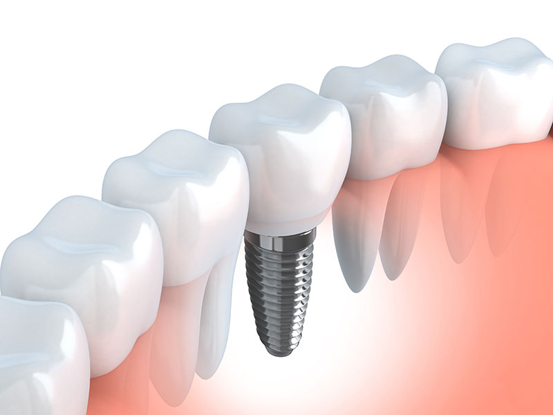 Benefits Of Choosing Dental Implants