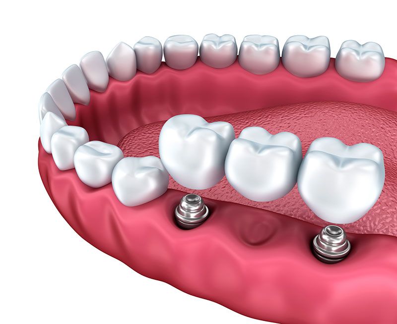 Learn All About Dental Bridges