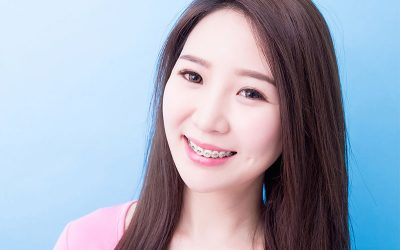 How To Keep Your Teeth Clean With Dental Braces