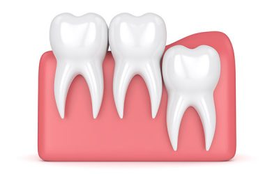 Everything You Need To Know About Wisdom Teeth
